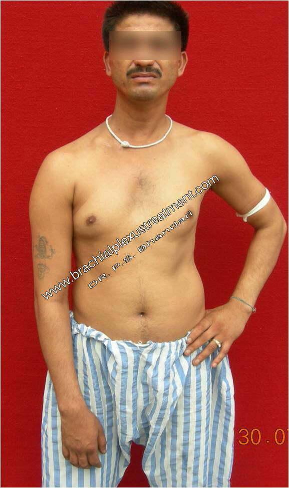 adult brachial plexopathy